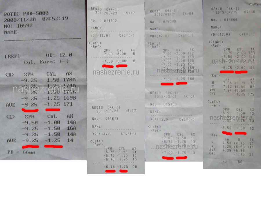 Лазерная коррекция зрения стоимость операции в москве